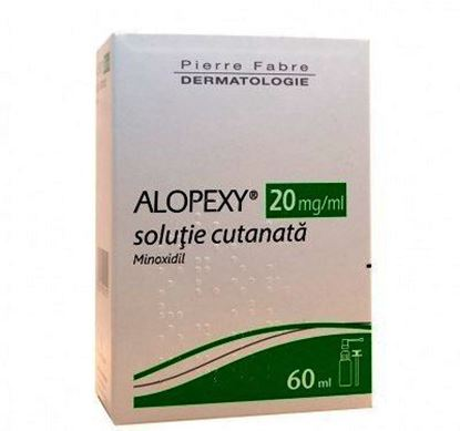 Imagine ALOPEXY 2% MINOXIDIL SOLUTIE CUTANATA X  60ML